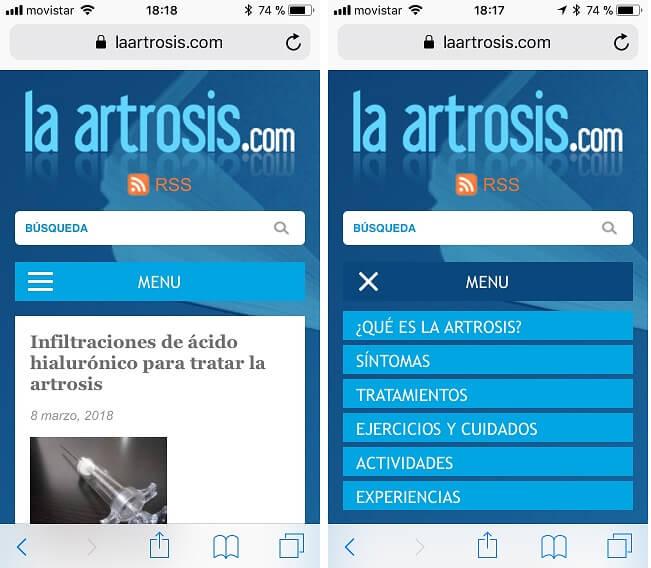 la artrosis.com
